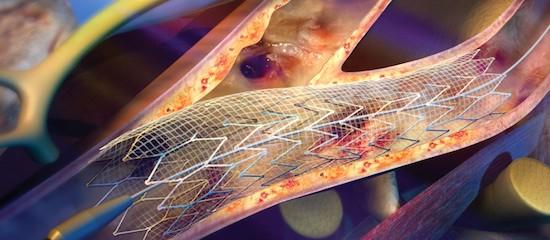 В республиканской больнице впервые провели стентирования сонных артерий