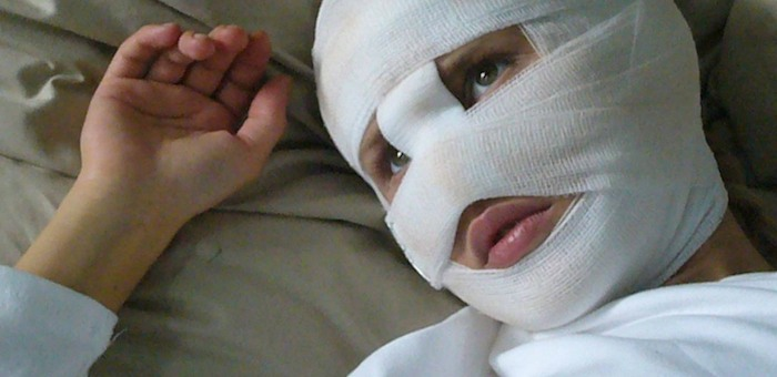 В Усть-Кане осудили мужчину, который изуродовал лицо девушке