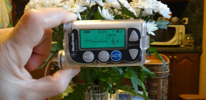 Инсулиновые помпы больным диабетом стали устанавливать в Республике Алтай