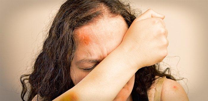 Пьяный сын разбил матери голову кастрюлей