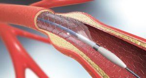 Операции по стентированию артерий ног впервые проведены в Республике Алтай