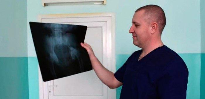70-летней женщине сделали сложную операцию по протезированию тазобедренного сустава