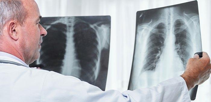 Три новых случая заражения коронавирусом выявлено на Алтае