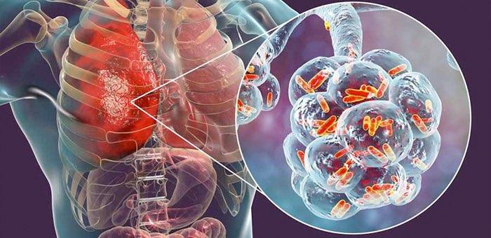 Почти у 40% заразившихся коронавирусом на Алтае диагностирована пневмония