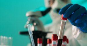 17 случаев заражения коронавирусом выявлено за сутки в Республике Алтай