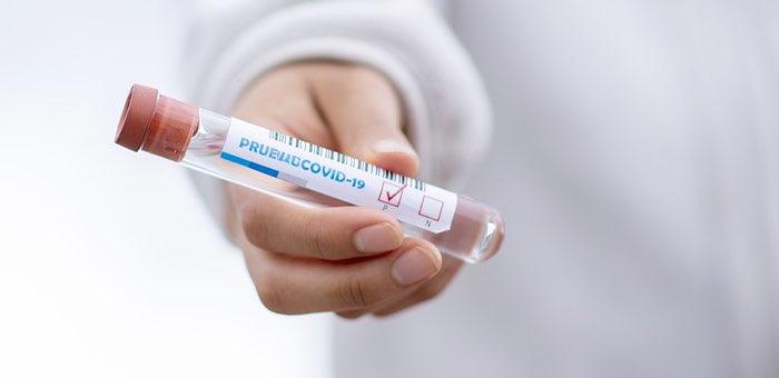 За минувшие сутки выявлено 24 случая заражения коронавирусом