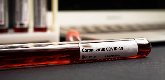 Коронавирус: 19 новых случаев за сутки