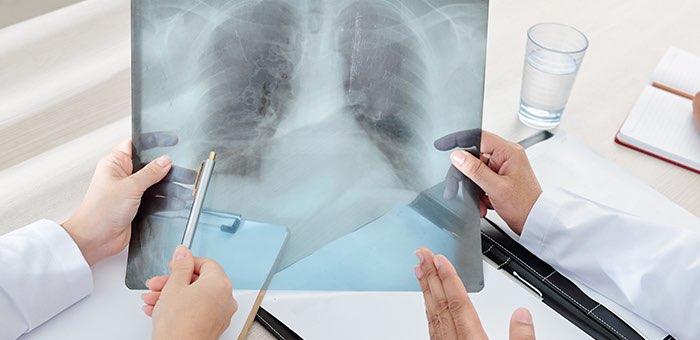 Одна смерть и 144 новых случая заражения: сводка по коронавирусу за сутки