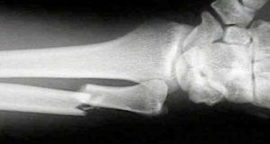 Житель Турочака сломал руку сожительнице, которая отправила его по морозу за выпивкой