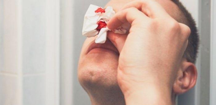 Драка в Кош-Агаче: мужчина откусил противнику нос