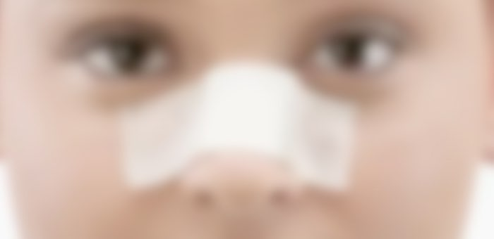 Ученик школы №10 сломал нос однокласснице. Возбуждено уголовное дело