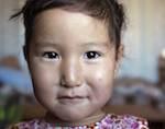 Деньги на лечение четырехлетней Русланы Малчановой из Кызыл-Таша собраны