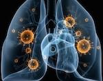 В Республике Алтай сохраняется сложная ситуация с внебольничными пневмониями