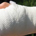 Депутат напал на мужчину и сломал ему руку
